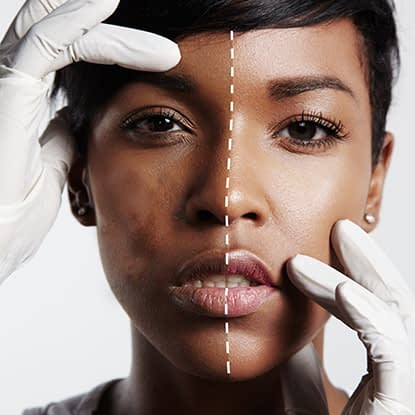 A woman's skin before and after a skin treatment