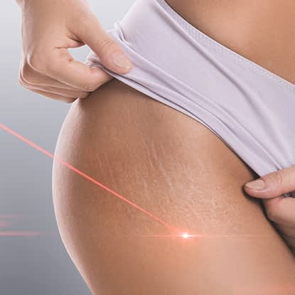 A woman getting laser therapy on her stretch marks